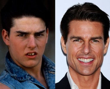 Tom-Cruise-cosmetic-dentistry